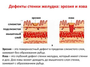Эффективна ли замена кардимагнила на клопидогрель при эрозии желудка