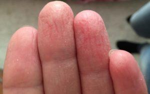 Трескаются подушечки пальцев и кожа сохнет