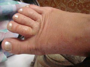 Красная сыпь на пальцах ног