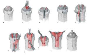 Меатотомия