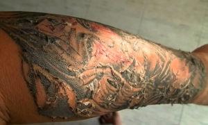 Заживление татуировки