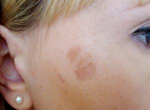 Пигментное пятно на лице припухло и покраснело