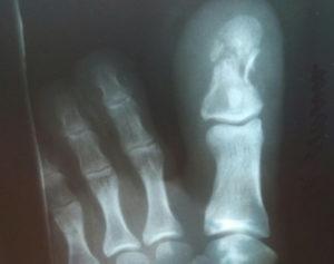 Неправильно сросшийся краевой перелом основания ногтевой фаланги
