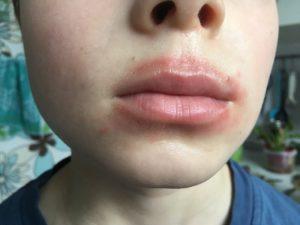 Красные пятна возле губ