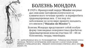 Болезнь Мондора или киста