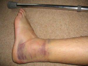 Подвернул ногу с хрустом