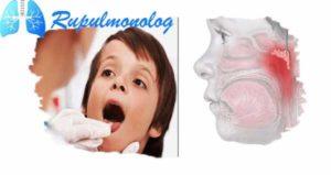 Как лечить кашель при отите и аденоидите