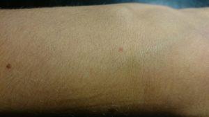 Появляются красные точки на руках