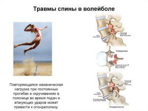 Стало болеть плечо при игре в волейбол
