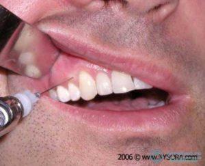 Онемение языка после укола в десну