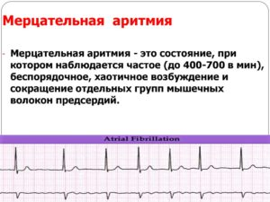 Аритмия или всд