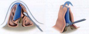 Кровотечение после септопластики