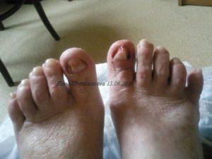 Выростит ли ноготь после удаления