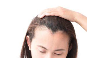 Волос на лбу