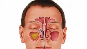 Тяжесть в пазухах, но нос дышит