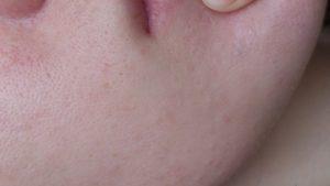 Прыщи. Проблемы с щитовидной железой