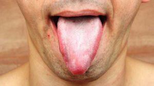 Белый налет и шершавость на языке