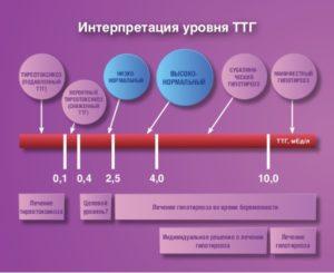 Уровень ТТГ, увеличенная щитовидка