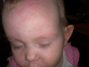 Сыпь у 8 месячного ребенка