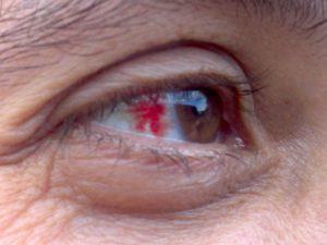 После удара лопнул сосуд в глазу