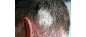 Белое пятно на волосах