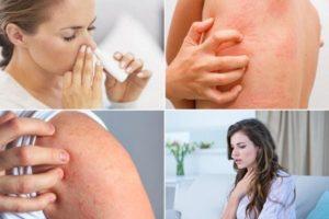 Аллергия на обезболивающее