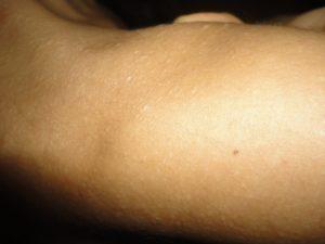 Белая бесцветная сыпь на плечах