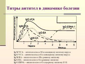 Высокий титр антител к ВЭБ
