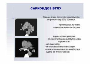 Кальцинированные лимфоузлы