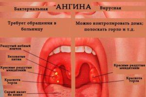 Боль при глотании, гнойники, на миндалинах и стенке глотки, температура