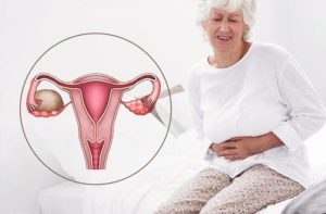 Перименопауза, эндометриоз