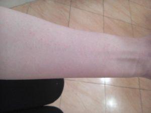Яркая красная полоса на внутренней стороне руки