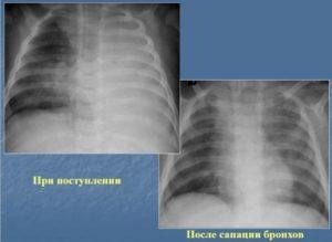 Дисковидный ателектаз у ребенка три года после затяжной пневмонии