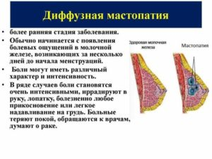 Жжение в левой молочной железе