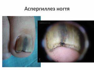 Аспергиллез ногтей