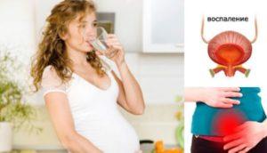 Острый цистит при планировании беременности
