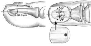 Перелом бугристости ногтевой фаланги