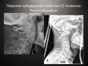Перелом зубовидного отростка