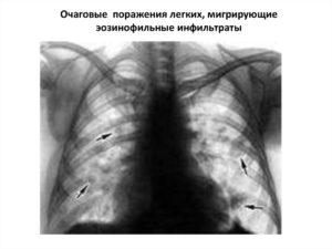Очаговое поражение легких