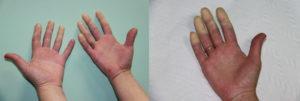 Белеет и немеет безымянный палец