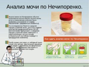 Можно ли сдавать Прозрачную мочу на лаборатнорный драг-тест