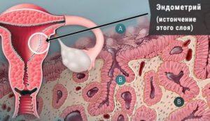 Возможна ли беременность при маленьком эндометрии