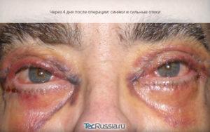 Отек конъюнктивы после блефаропластики