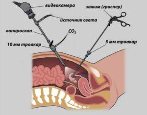 Эндометриоидная киста после лапароскопии
