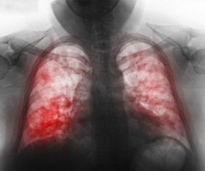 Пневмония двухсторонняя