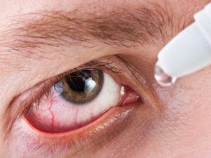 Болит глаз, упало зрение