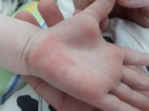 Красное пятно на руке с волдырями и чешется