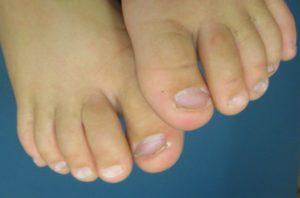 Ногти на ногах ребенка неправильной формы