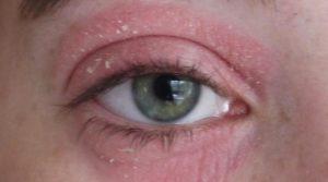 У ребенка чешутся глаза и краснеет под нижними веками