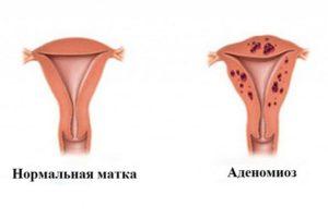 Диффузные изменения шейки матки